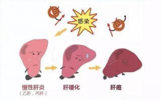 灵芝孢子粉对肝脏有什么好处?